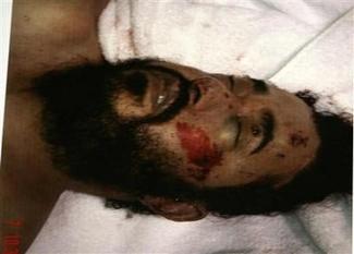 Dead_alzarqawi